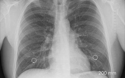 Langdurig maskergebruik kan bijdragen aan longkanker in een gevorderd stadium